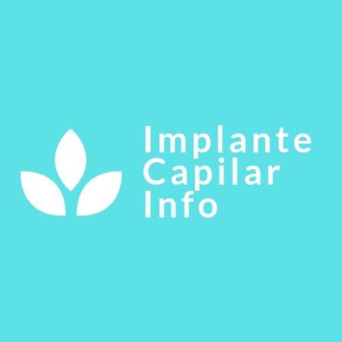 Implante Capilar Info