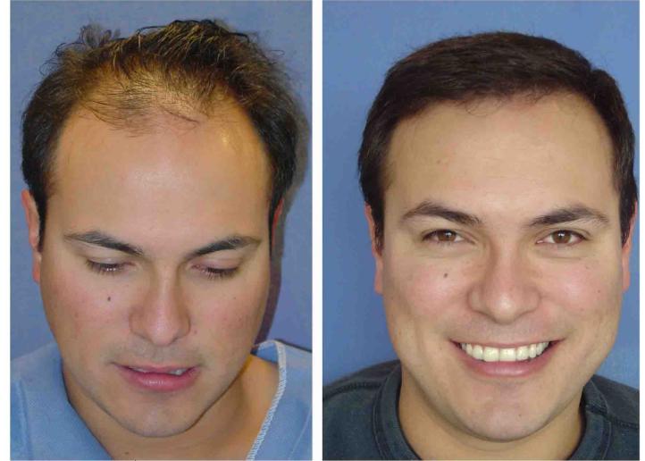 Implante Capilar Info 1